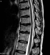MRI-spine