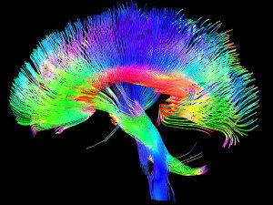 Brain-300x225