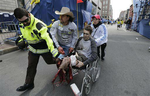 Improvised tourniquet placed on wounded spectator's leg after the Boston Marathon bombing